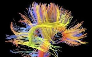 human-brain_2834862b